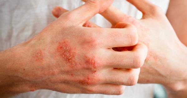 eczema manos