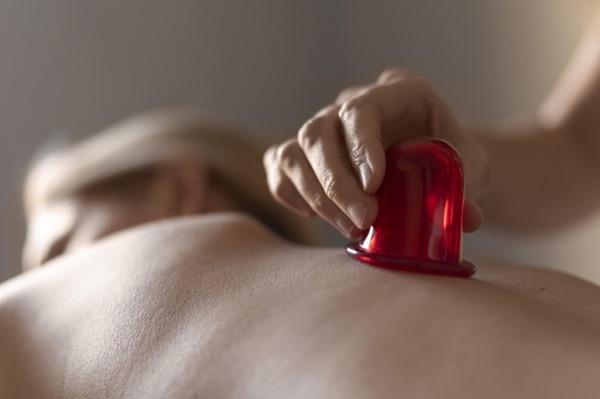 Cupping: ventosas para eliminar la celulitis. ¿Son útiles?
